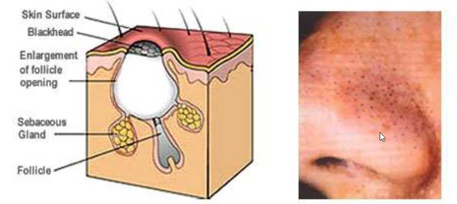 What are Blackheads? Blackheads are little bumps embedded into the pores of our skin. The